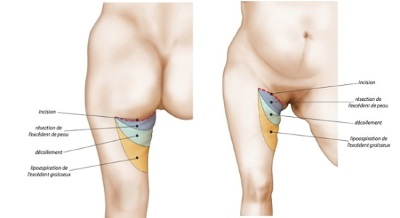 lifting cuisses tunisie incisions