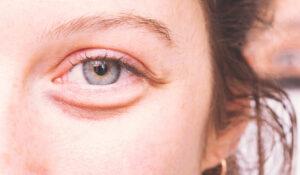 causes cernes sous yeux