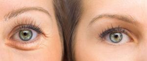 enlever-cernes-sous-yeux