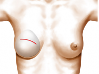 reconstruction du sein avec des implants