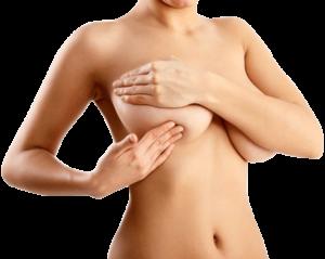 lifting des seins sans implants